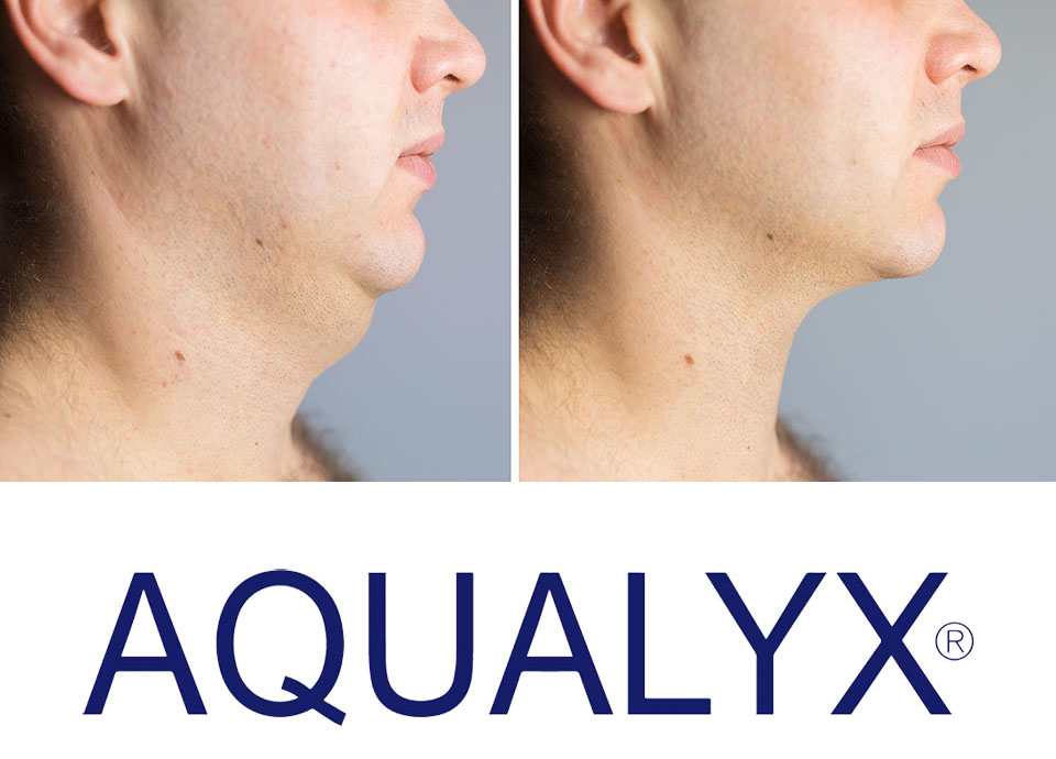 Man before and after double chin fat correction procedure